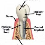 Dental Implant Sonora CA Dentist